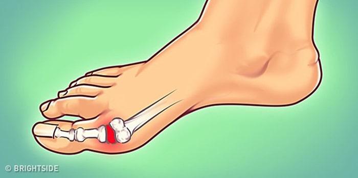 Bệnh gout - bệnh cơ xương khớp phổ biến