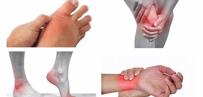 Các loại bệnh về cơ xương khớp phổ biến nhất hiện nay