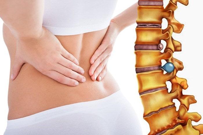 Thoát vị đĩa đệm là một trong những căn bệnh phổ biến hiện nay